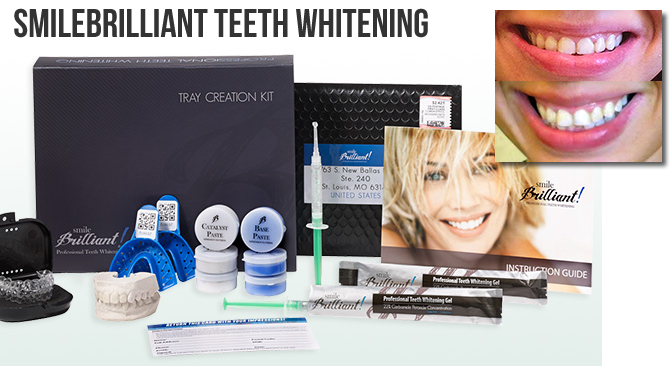 Teeth Whitening Before + After Transformation + $140 #GIVEAWAY!