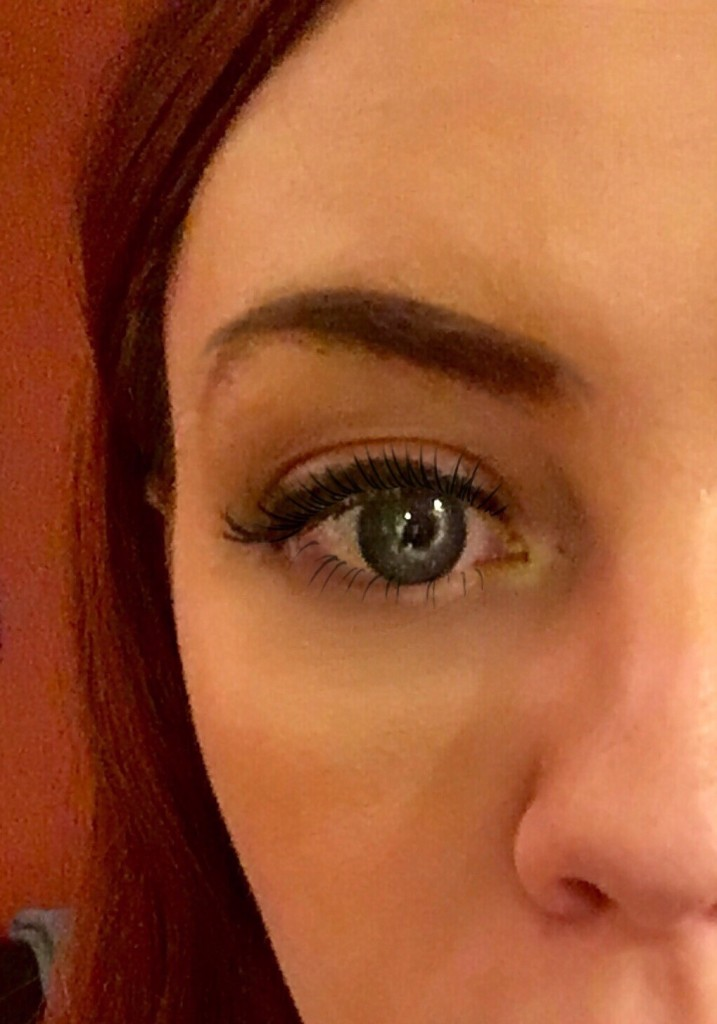 Proactiv Before After Results Redhead Blue Eyes