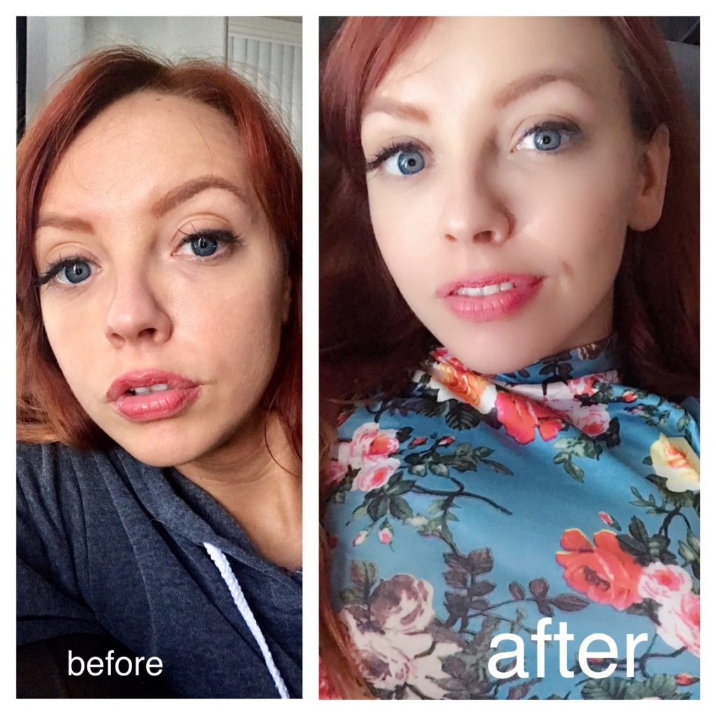 olay regenerist before after